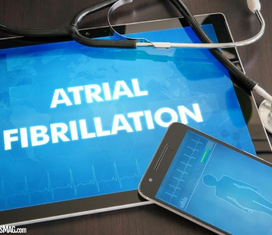 The Complete AFib Treatment Guide
