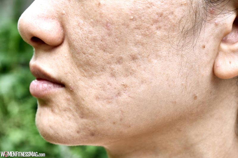 Why do you have acne scars?