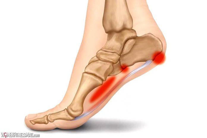 8 Most Common Symptoms of Plantar Fasciitis
