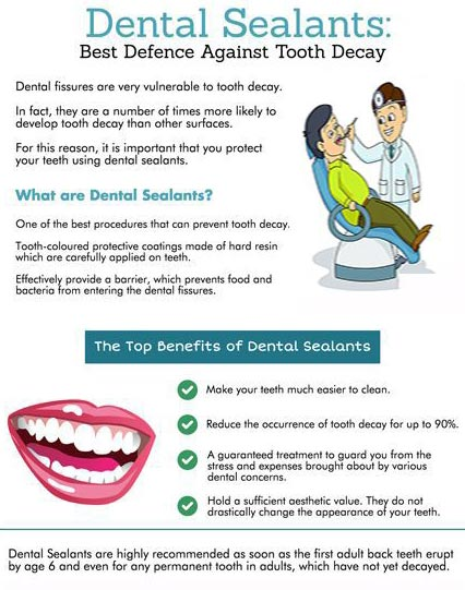 Dental Sealant Best Defence Against Tooth Decay