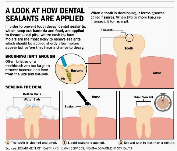 How Dental Sealants are Applied