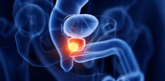 Enlarged Prostate- Treatment Options You Should Know About