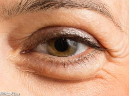 10 Reasons Why Your Eyelid is Swollen