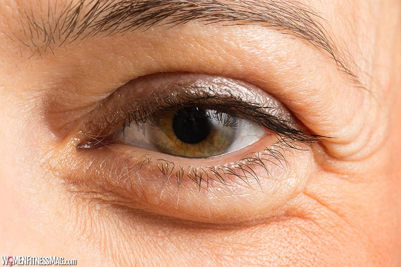 10 Reasons Why Your Eyelid is Swollen – Women Fitness Magazine