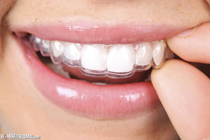 What are Invisible Braces?
