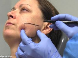 Botox And Dentistry, How Do They Mix?