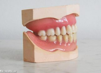 7 Facts About Teeth Grinding That Will Shock You