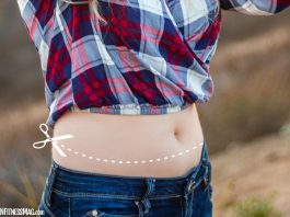 General Overview of a Tummy Tuck