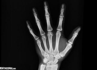 What You Need To Know About Hand Injuries