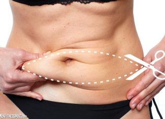 A Tummy Tuck Zaps Away Stubborn Belly Fat