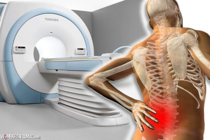 MRI for Patients with Lower Back Pain: When It is Necessary